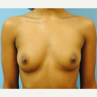 "22 year old woman treated with Breast Implants, A to D cup, 5'3"" 105 pounds before 3623948"