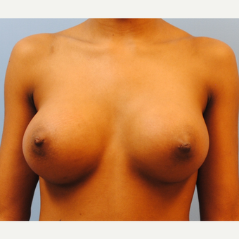 "22 year old woman treated with Breast Implants, A to D cup, 5'3"" 105 pounds after 3623948"