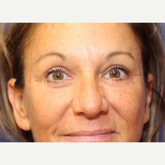 50 year old woman with Forehead Lift after 3697064