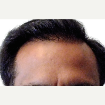 Man treated with ARTAS Robotic Hair Transplant after 1805704