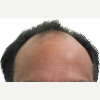 Man treated with ARTAS Robotic Hair Transplant before 1805704