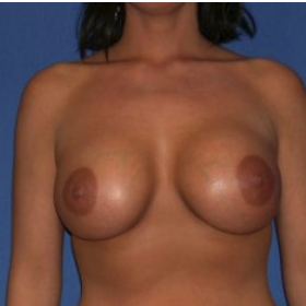 25-34 year old woman treated with Breast Augmentation after 3220076