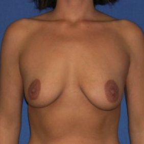 25-34 year old woman treated with Breast Augmentation before 3220076