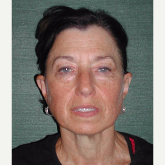 55-64 year old woman treated with Facelift before 3093037
