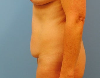 51 Year old after tummy tuck before 3135526