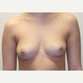 22 year-old woman treated with Breast Augmentation. before 3358561