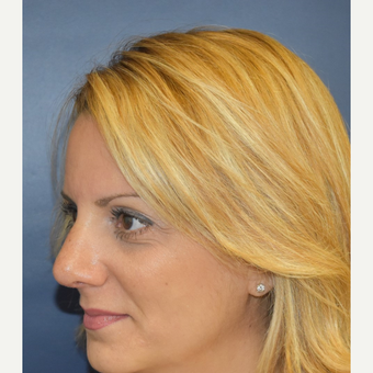 35-44 year old woman treated with Rhinoplasty after 3131292