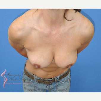 45-54 year old woman treated with Breast Fat Transfer after 2921191