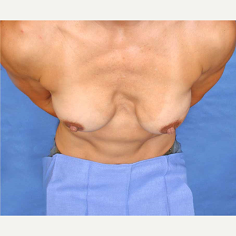 45-54 year old woman treated with Breast Fat Transfer before 2921191