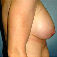 39 year old woman treated with Breast Lift with Implants after 3665938