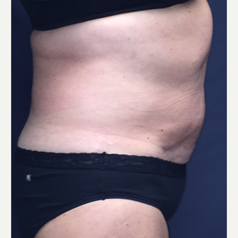45-54 year old woman treated with SculpSure after 3725394