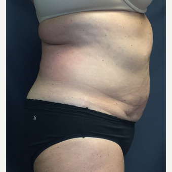 45-54 year old woman treated with SculpSure before 3725394