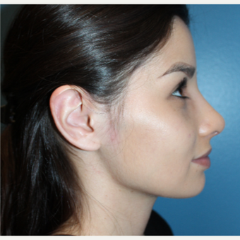 18-24 year old woman treated with Rhinoplasty after 3401960