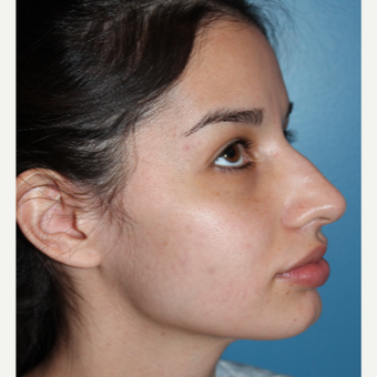 18-24 year old woman treated with Rhinoplasty before 3401960