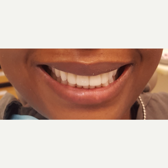 35-44 year old woman treated with Porcelain Veneers after 3306332