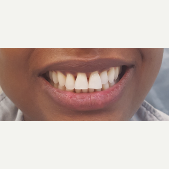 35-44 year old woman treated with Porcelain Veneers before 3306332