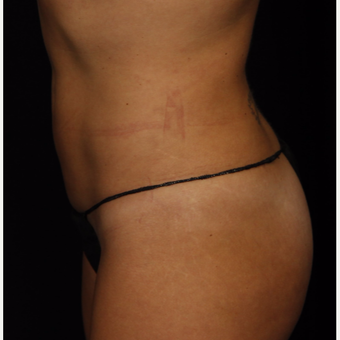 35-44 year old woman treated with Smart Lipo after 3542247
