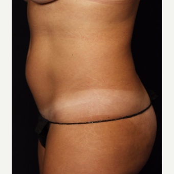 35-44 year old woman treated with Smart Lipo before 3542247