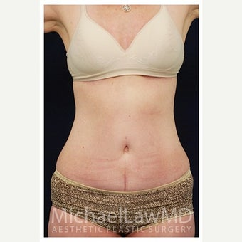 45-54 year old woman treated with Mini Tummy Tuck after 1567302