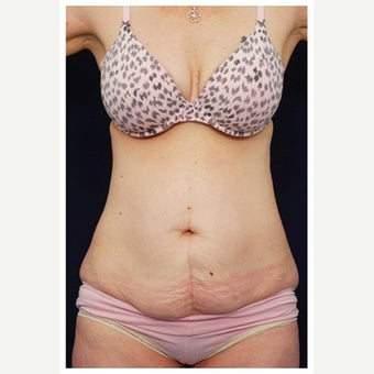 45-54 year old woman treated with Mini Tummy Tuck before 1567302