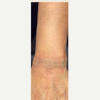 55-64 year old woman treated with Tattoo Removal after 3518141