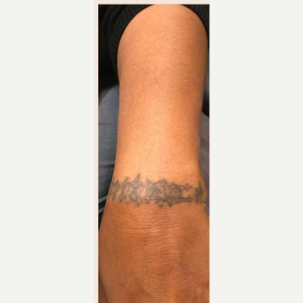 55-64 year old woman treated with Tattoo Removal before 3518141
