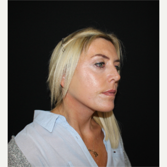 45-54 year old woman treated with SMAS Facelift after 3494000