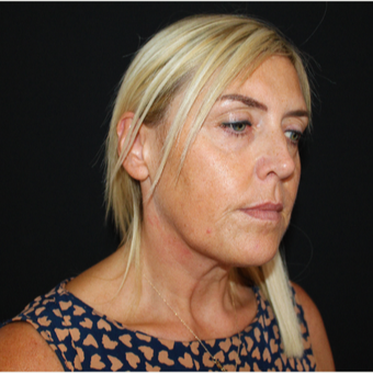 45-54 year old woman treated with SMAS Facelift before 3494000