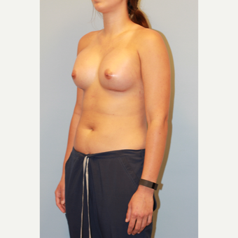 18-24 year old woman treated with Breast Augmentation after 3027392