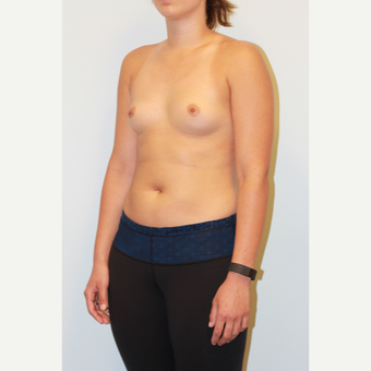 18-24 year old woman treated with Breast Augmentation before 3027392