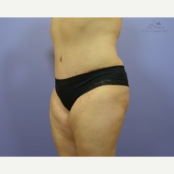 35-44 year old woman treated with Liposuction after 3391534