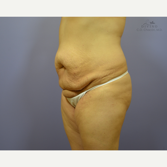35-44 year old woman treated with Liposuction before 3391534