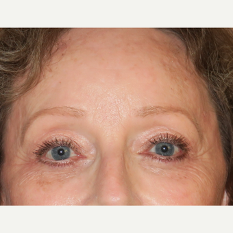 55-64 year old woman treated with Laser Resurfacing after 3295087