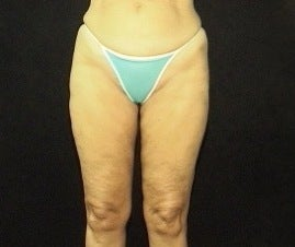 Thighplasty/Body Lift before 1092858