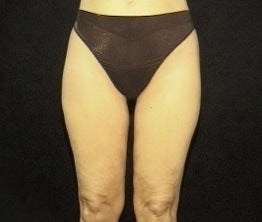 Thighplasty/Body Lift after 1092858
