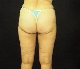 Thighplasty/Body Lift 1092858