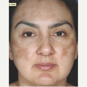 45-54 year old woman treated with Melasma Treatment before 2579554