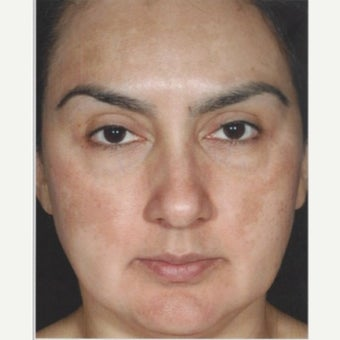 45-54 year old woman treated with Melasma Treatment after 2579554