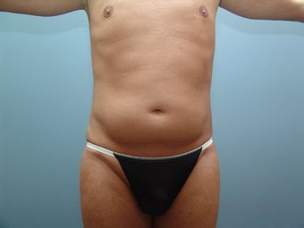 39 Year Old Male Treated for Abdominal Fat Deposits