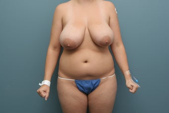 Breast Reduction and abdomen Liposuction