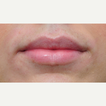 18-24 year old woman treated with Lip Augmentation after 3122347
