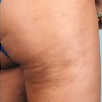 Cellulaze after 992323