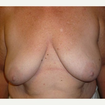 55-64 year old woman  with Breast Augmentation/Full Mastopexy before 1972075