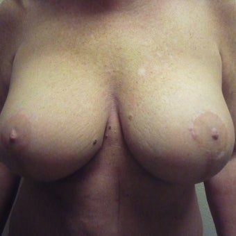 55-64 year old woman  with Breast Augmentation/Full Mastopexy after 1972075