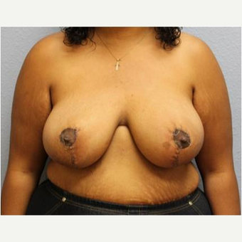 25-34 year old woman treated with Breast Reduction after 3736937