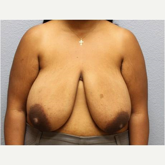 25-34 year old woman treated with Breast Reduction before 3736937