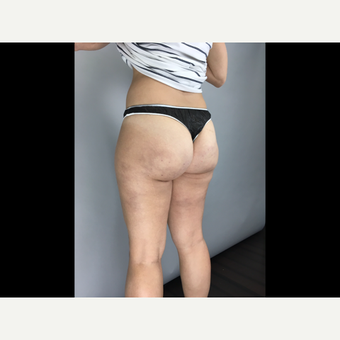 25-34 year old woman treated with Cellulite Treatment after 3684493