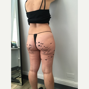 25-34 year old woman treated with Cellulite Treatment before 3684493