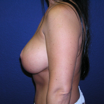 35-44 year old woman treated with Breast Lift with Implants after 3448834