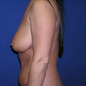 35-44 year old woman treated with Breast Lift with Implants before 3448834